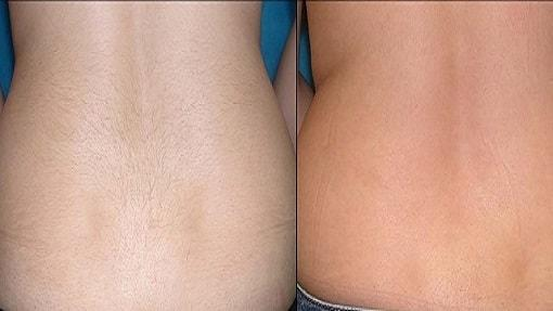 Lighter Skin Laser Hair Removal
