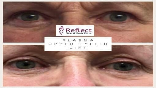 Upper Eye Lid Lift