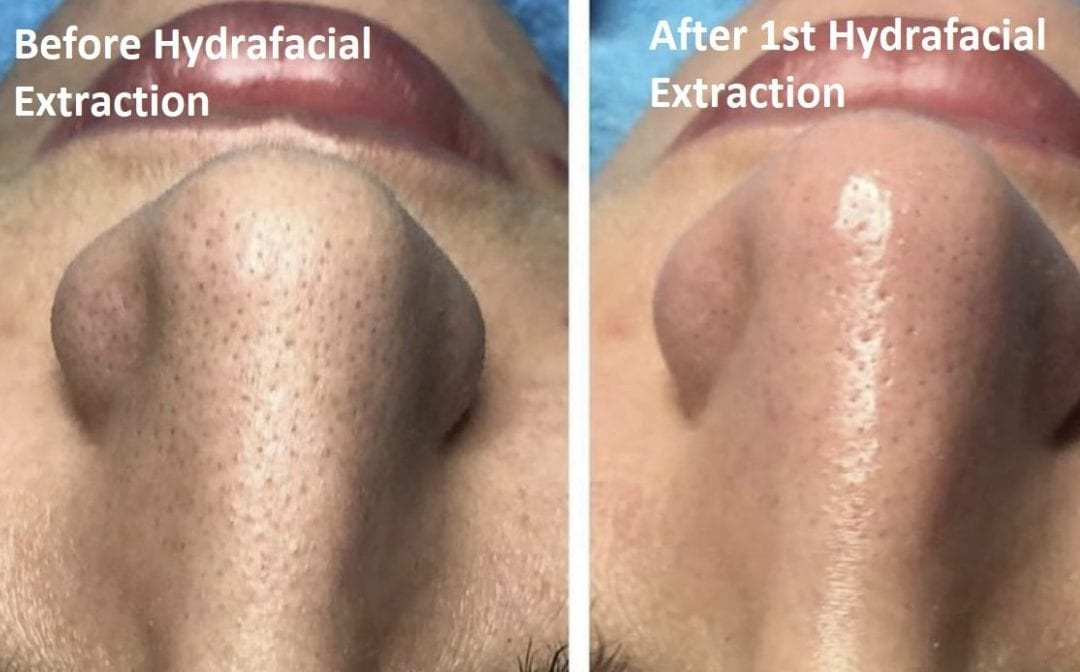 Hydrafacial Extraction